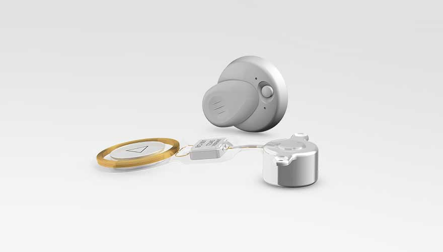 First Active Bone Conduction Implant