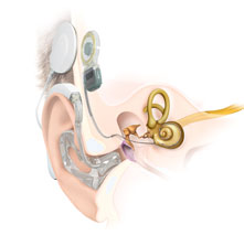 Anatomy Cochlear Implant EAS